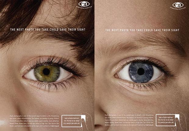 عکس+کودک+یک+چشم