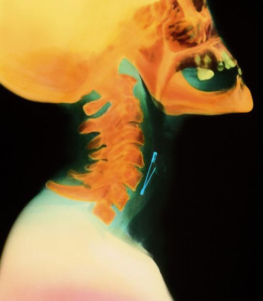 عجیبترین تصاویر ایکس ری