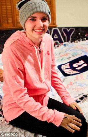 بهبود باورنکردنی دختر 16 ساله پس از آتش سوزی، تنها بعد از دو ماه