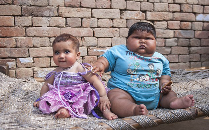 (تصاویر) چاقی کم سابقه نوزاد هندی