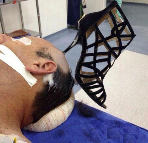(تصویر) پاشنه کفش زن در سر شوهر جا ماند!