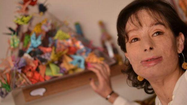 زندگی دختر کلمبیایی، قربانی اسیدپاشی