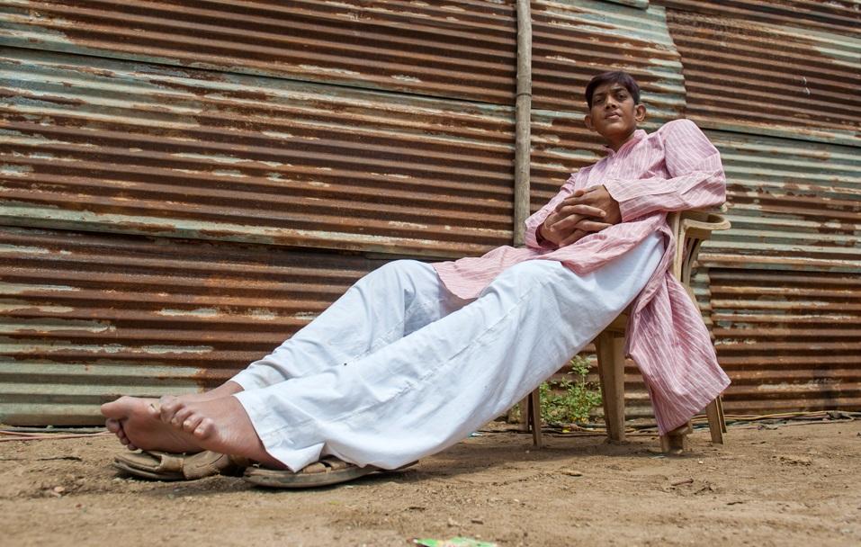 پسری که کسی حاضر نیست با او ازدواج کند+(تصاویر)