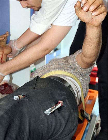 (تصاویر +16) حادثه دلخراش برای کارگر مشهدی