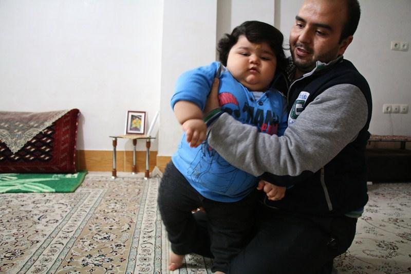 (تصاویر) کودک یک ساله بجنوردی با ۴۲ کیلو وزن