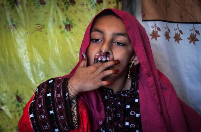 (تصاویر) بیماری نادر «انیسه»