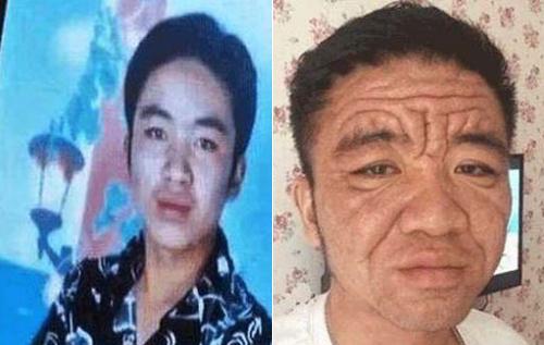 مرد 30 ساله، ناگهان پیرمرد شد!