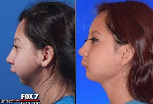 تصویر دختر بدون فک قبل و بعد از عمل