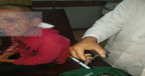 (عکس) تنبیه دانش آموز با فرو کردن مداد در سر!