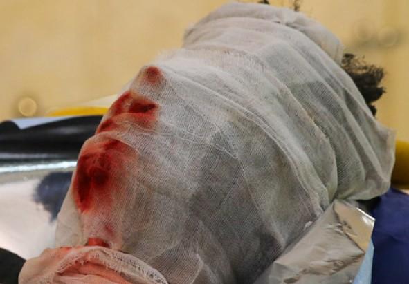 (تصاویر) مصدومان چهارشنبهسوری در تهران