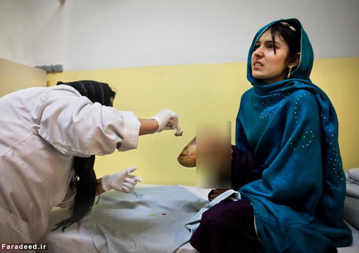 عکس زن افغان