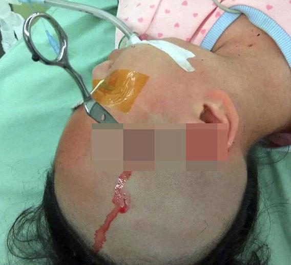 (تصاویر)پدر بیرحم قیچی را در سر دختر 10 سالهاش فرو کرد