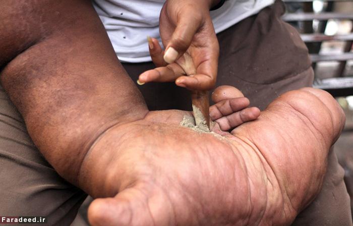 (تصاویر) جوانی با دستی به وزن 20 کیلو!