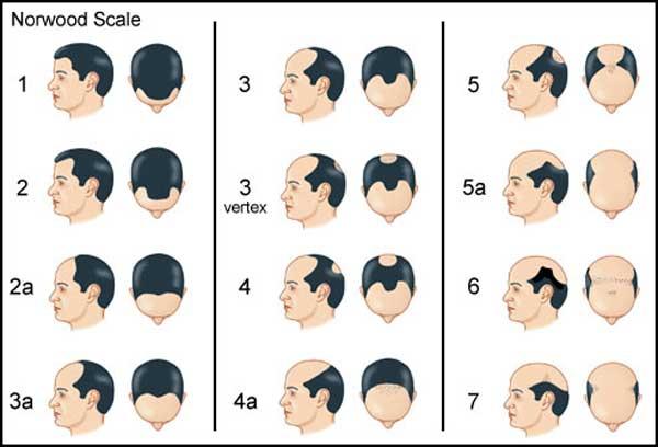 راه حلهای درمان ریزش مو در مردان