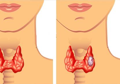 چیزهایی که باید دربارهی سرطان تیروئید بدانید