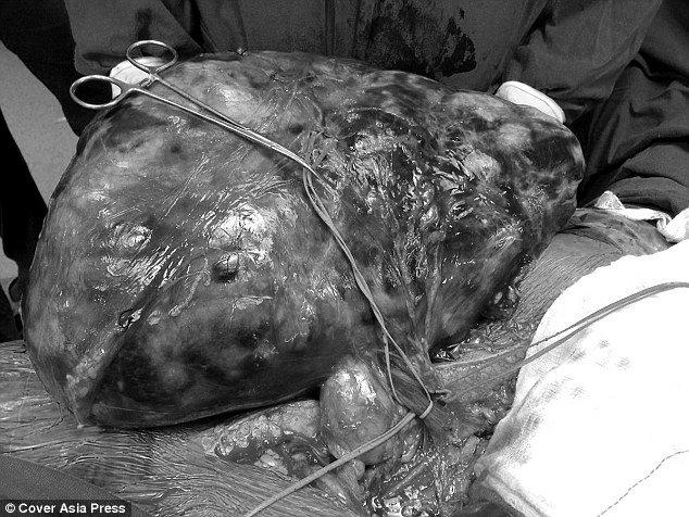(تصاویر) غده 7 کیلویی در شکم یک زن