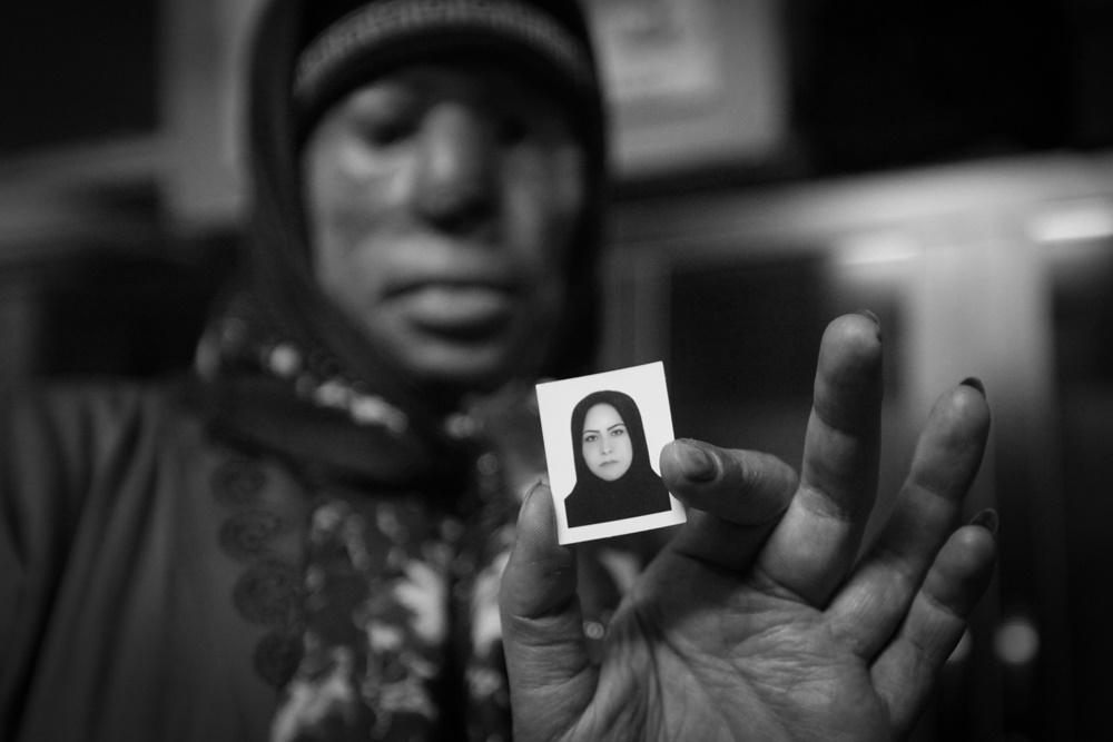 روایت زندگی زنی که قربانی اسیدپاشی برادران همسرش شد