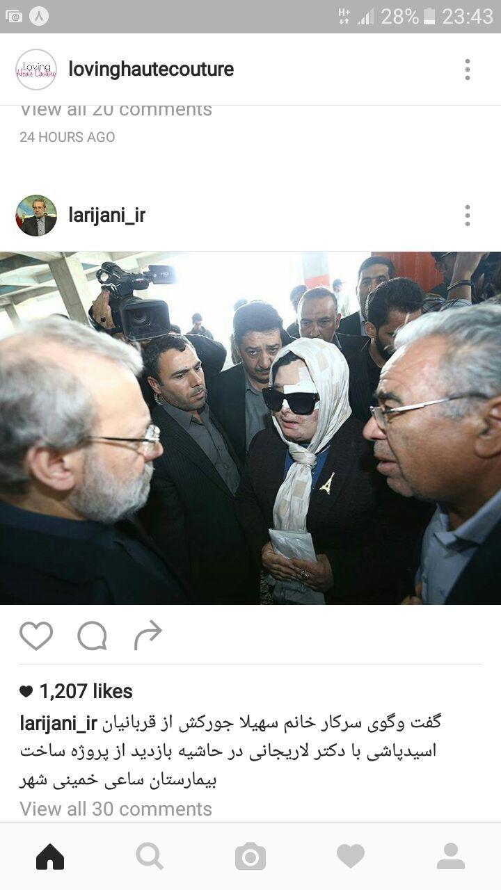 (تصویر) گفتگوی یک قربانی اسیدپاشی با لاریجانی