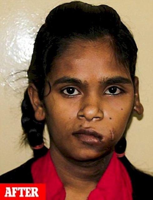 (عکس) خروج تومور ۲.۸ کیلویی از صورت دختر هندی