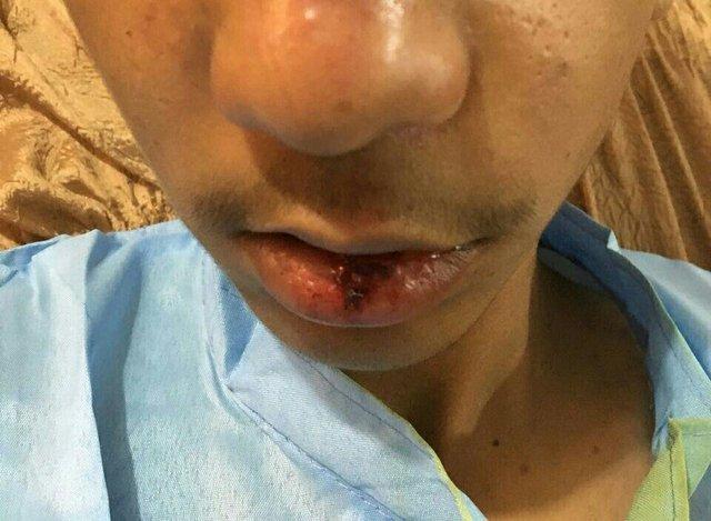 توضیحاتی درباره حادثه تنبیه بدنی دانشآموز جیرفتی