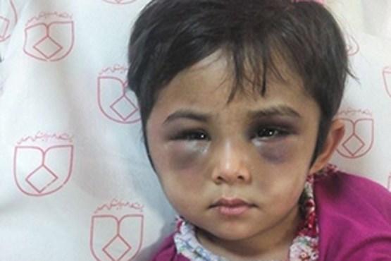 (عکس) کودک آزار دیده با صورت کبود