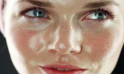 ۶ درمان خانگی برای پوستهای چرب