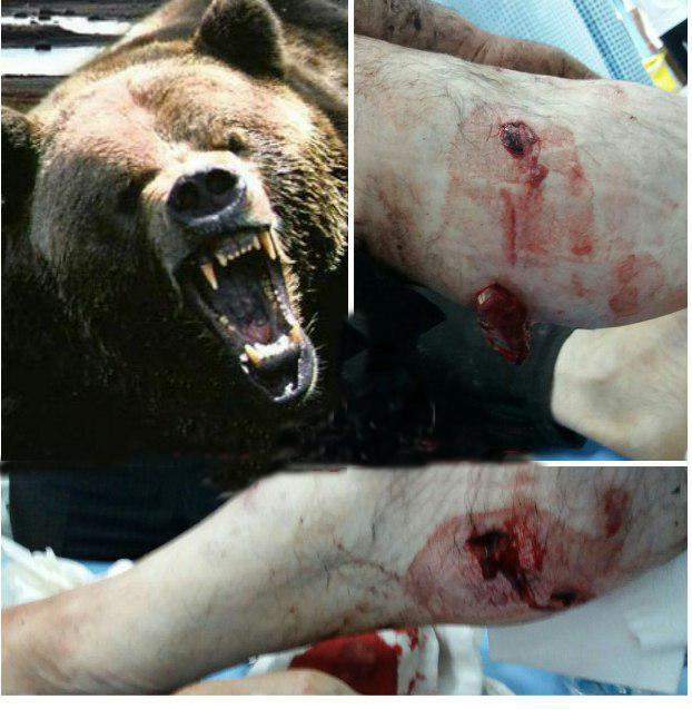 (عکس) حمله خرس به پیرمرد قزوینی
