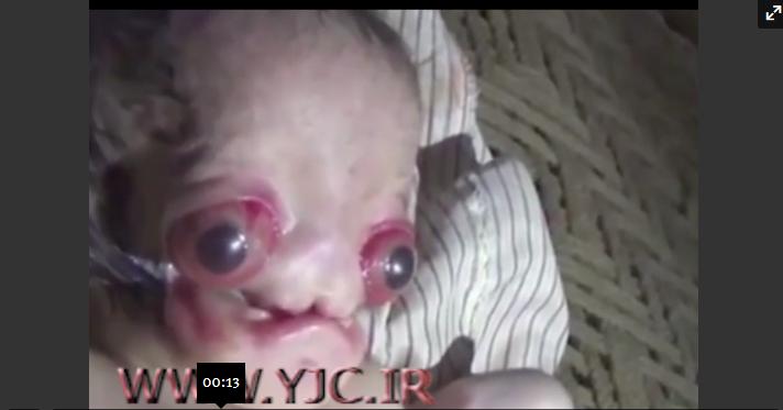 تولد نوزادی شبیه موجودات فضایی!
