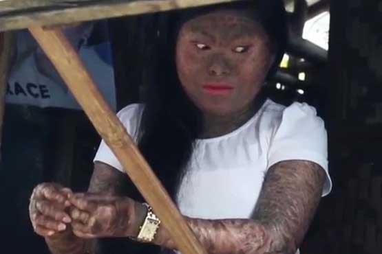 (تصاویر) دختری معروف به بانوی مار!