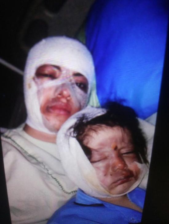 (تصویر) اسیدپاشی روی صورت عمه و برادرزاده اش
