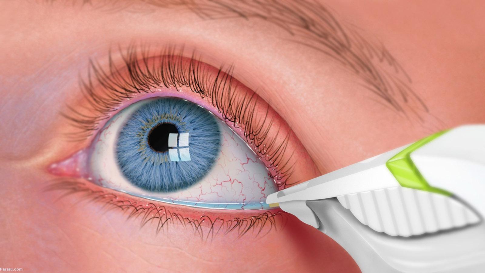 سندرم خشکی چشم؛ علل، علائم و درمان