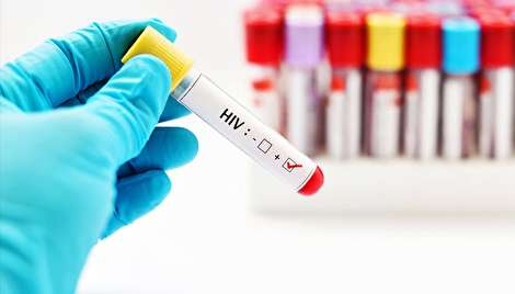 کشف جدید و جنجالی مقاومت انسان در برابر ایدز