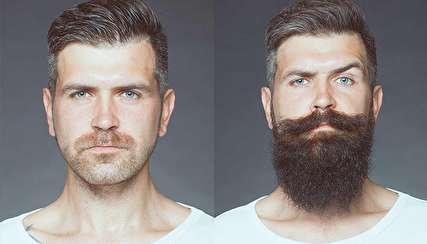 چرا ریش و سبیل برخی مردان کم رشد میکند؟