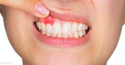 درمانهای خانگی موثر و فوری برای آبسه و عفونت دندان