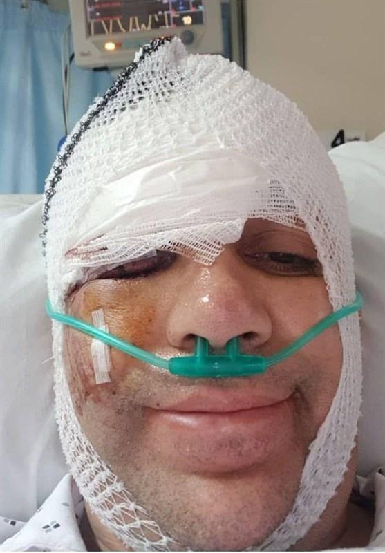 مصدومیت شدید امیر کربلاییزاده در تصادف با اتوبوس