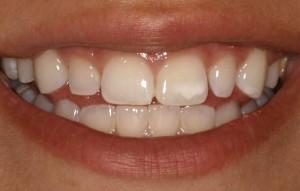دلیل لکههای سفید روی دندان چیست