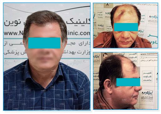 جشنواره ۷۷ روزه کلینیک پوست و مو ایران نوین آغاز شد