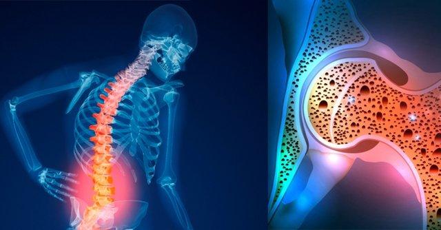 ۵ راهکار برای جلوگیری از پوکی استخوان