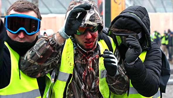 (تصاویر) خشونت در فرانسه؛ ۷۰۰ بازداشت، ۱۰۰ زخمی