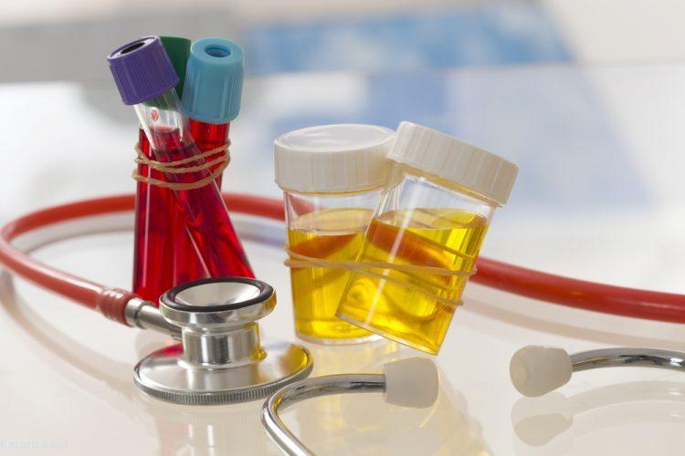 تفسیر برگه آزمایش خون و آزمایش ادرار