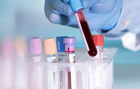 تفسیر کامل برگه آزمایش خون و آزمایش ادرار