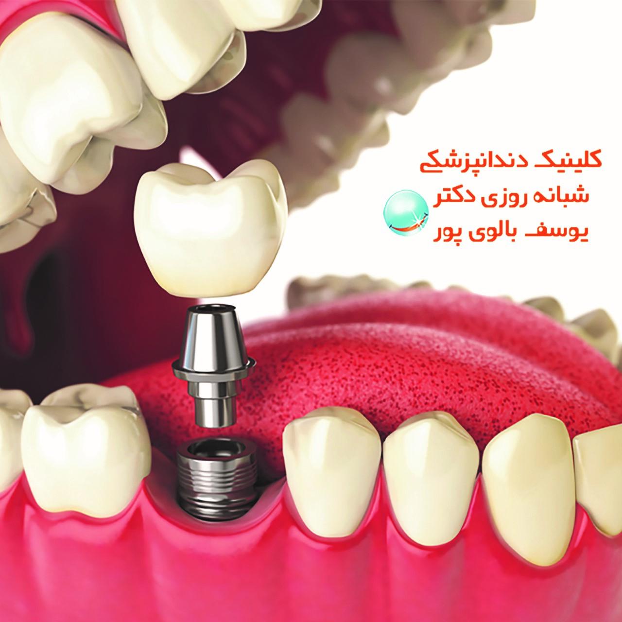 همه چیز درباره ی ایمپلنت و کامپوزیت دندان