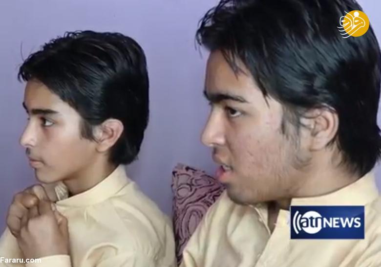 (تصویر) دو خواهر که با تغییر جنسیت برادر شدند!