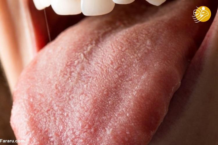 چه افرادی به آمپول ویتامین ب. ۱۲ نیاز دارند و فواید آن برای سلامتی چیست؟
