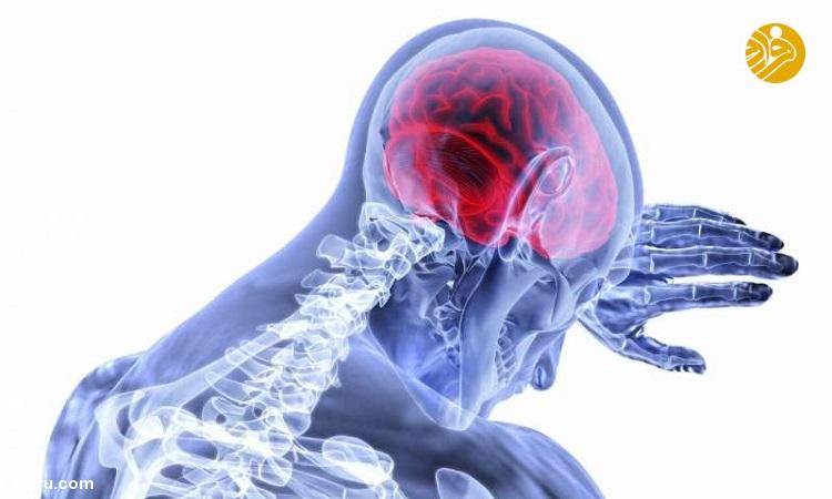 سکته مغزی و انواع آن