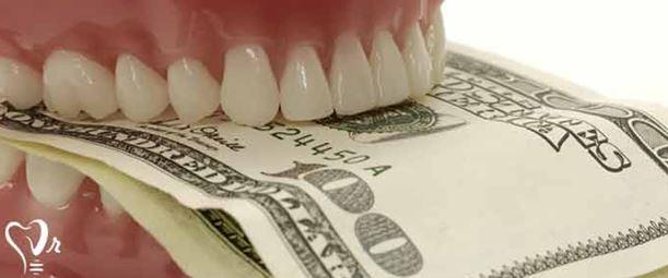 ایمپلنت دندان چقدر عمر میکند؟