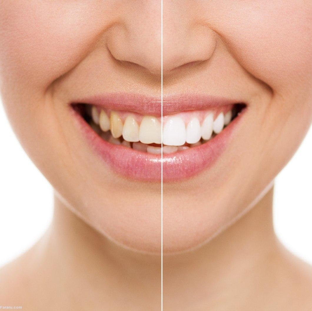 ۷ روش ساده و طبیعی برای سفیدتر کردن دندانها