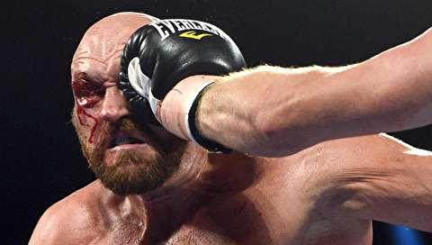 (تصاویر) پیروزی تایسون فیوری در مبارزه خونین بوکس