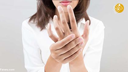 پسوریازیس چیست و چه علائم و نشانههایی دارد؟