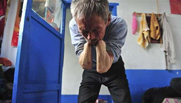 (تصاویر) داستان عجیب مردی با دستهای پولادی!